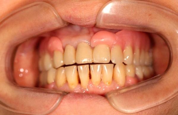 Что делать, если плохо сделали зубной протез в стоматологии?